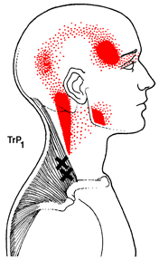Trigger Point Headaches