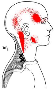 Trigger Point Headaches